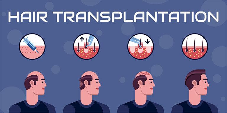 Hair-Transplantation